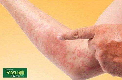 Bệnh phát ban đỏ ngứa