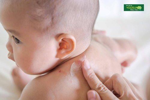 thuốc trị muỗi đốt cho trẻ sơ sinh