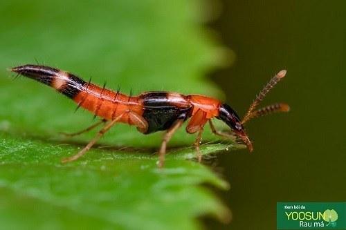 Bị kiến ba khoang đốt cần kiêng gì