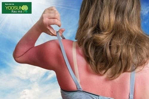 Khi da bị cháy nắng có trắng lại được không