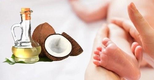Cách chữa chàm sữa bằng dầu dừa nguyên chất