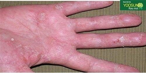 Bệnh viêm da dị ứng tiếp xúc có lây không