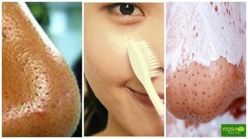 Cách dùng kem đánh răng trị mụn đầu đen
