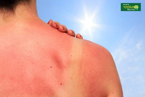Hình ảnh da bị cháy nắng