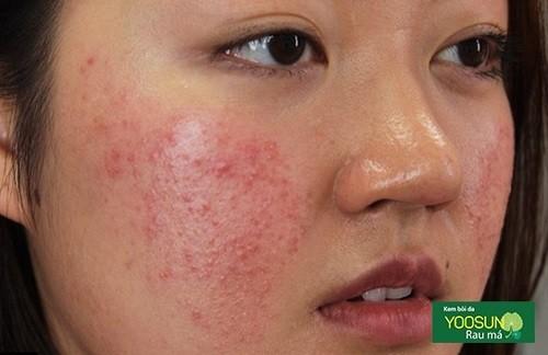 Hình ảnh viêm da tiếp xúc dị ứng ở mặt