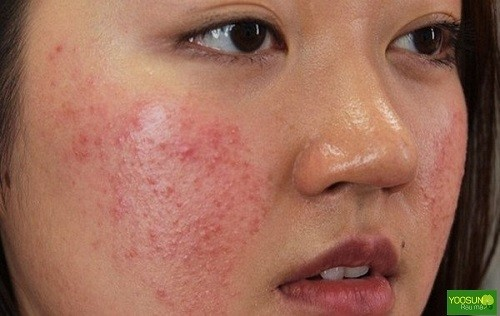 triệu chứng mụn trứng cá đỏ ở mặt
