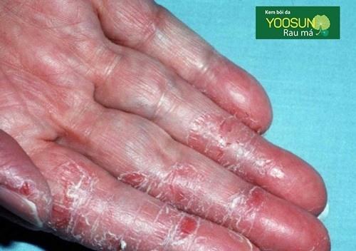 Bệnh viêm da kích ứng là gì