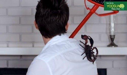 Bị bọ cạp cắn làm sao cho hết đau