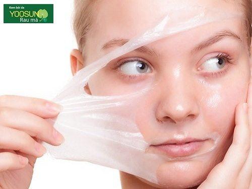 Cách chữa mụn đầu đen ở mũi