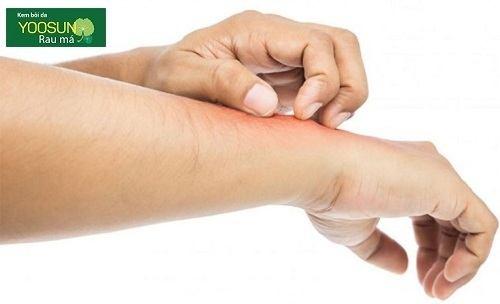 Cách điều trị bệnh á sừng ở mặt