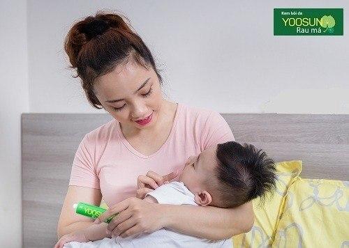 Cách điều trị viêm da tiếp xúc ở trẻ em