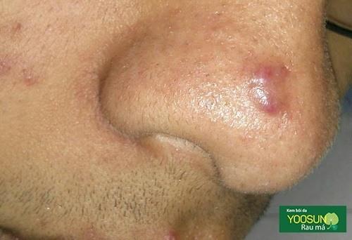 Cách trị sẹo mụn ở mũi