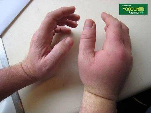 Cách xử lý khi bị ong đốt sưng tay chân