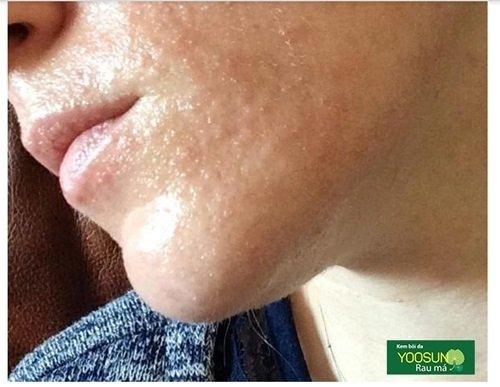 Da mặt bị mụn sẩn là gì
