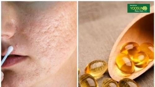 Điều trị sẹo mụn bằng vitamin e