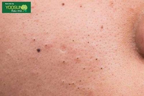 Nguyên nhân gây mụn đầu đen ở má