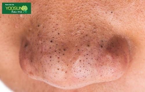 Tại sao có mụn đầu đen ở mũi