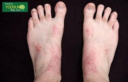 bệnh ngoài da ở chân