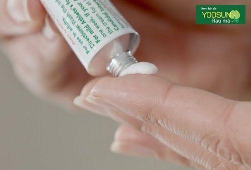 Cách chữa dị ứng nước hoa