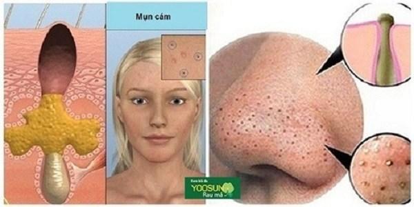 Hình ảnh da bị mụn cám
