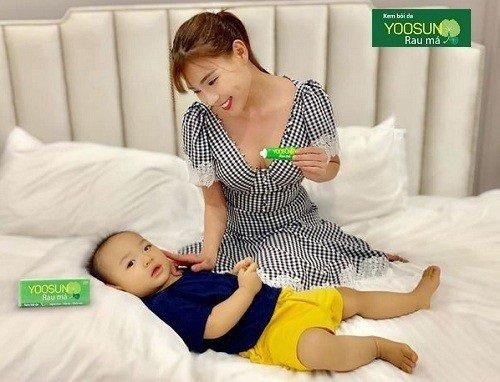 Kem bôi trị muỗi đốt cho bé