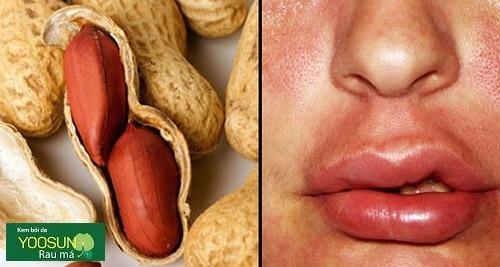 Bệnh dị ứng đậu phộng