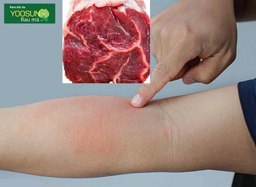Bị dị ứng thịt bò là bệnh gì
