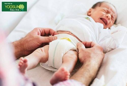 Cách chữa dị ứng bỉm ở trẻ sơ sinh