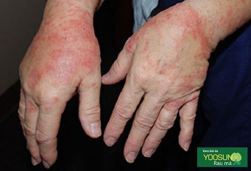 Da tay bị dị ứng nước rửa chén