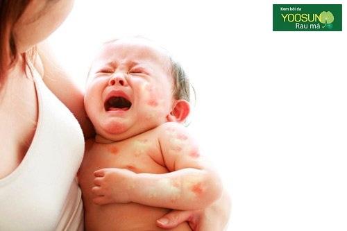 Dấu hiệu trẻ bị dị ứng sữa mẹ