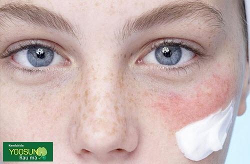 Triệu chứng dị ứng kem chống nắng vật lý