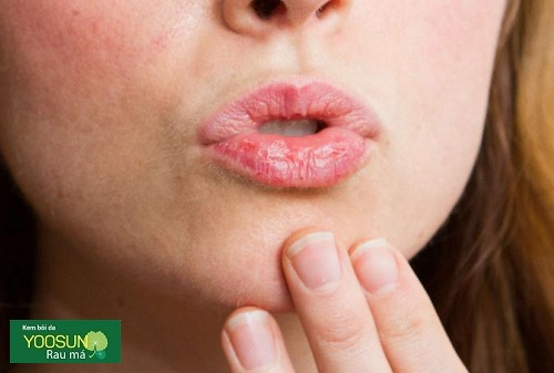 Triệu chứng dị ứng son môi
