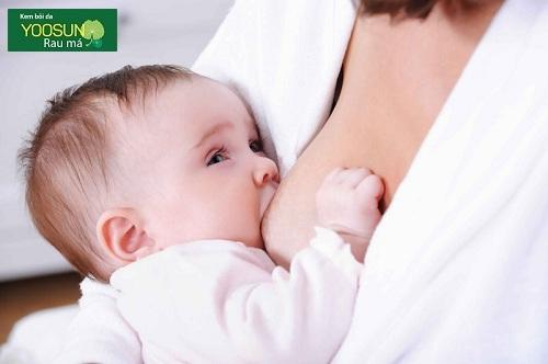 Triệu chứng trẻ dị ứng sữa mẹ