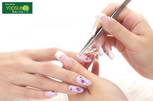 Dị ứng hóa chất nail
