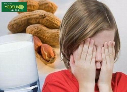 Dị ứng thực phẩm ở trẻ em