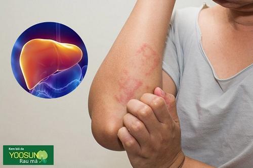 Nguyên nhân dị ứng gan là gì