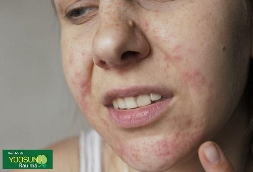 Triệu chứng dị ứng mật ong đắp mặt