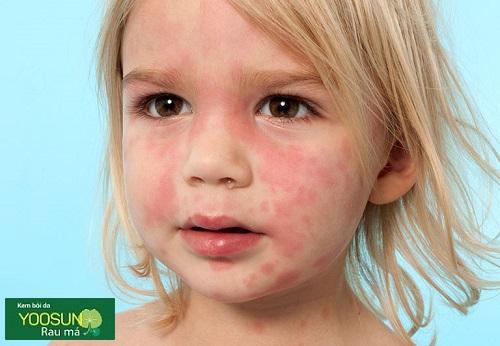 Trẻ bị mẩn ngứa là bệnh gì