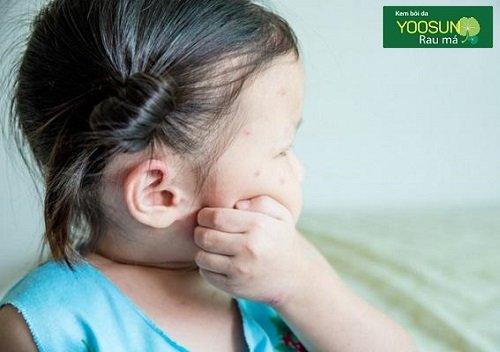 Trẻ mẩn ngứa ở mặt