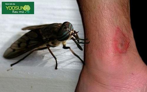 Bị ruồi trâu đốt có sao không