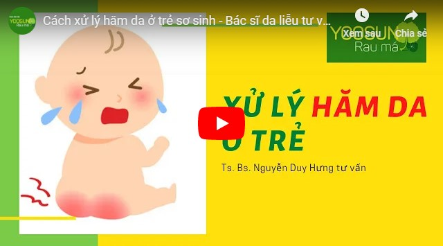 Video cách trị hăm cho bé bằng dầu dừa