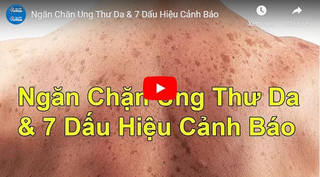 Video hậu quả của da bị cháy nắng