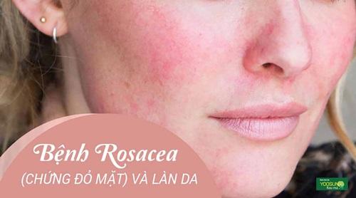Bệnh rosacea là gì