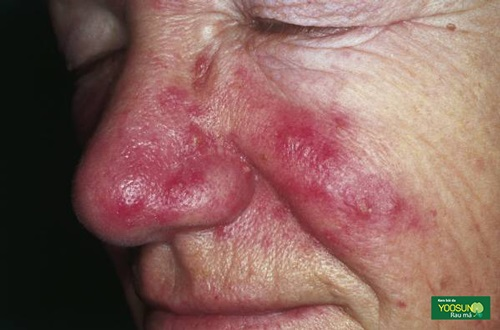 Triệu chứng bệnh rosacea