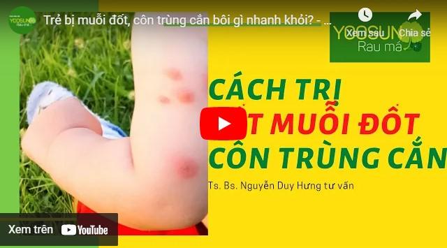 Video cách chữa muỗi đốt sưng to