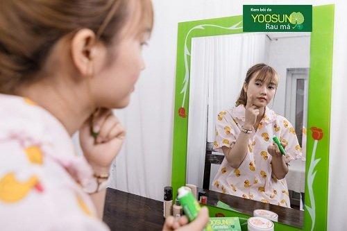 Kem yoosun rau má có trị mụn ẩn không