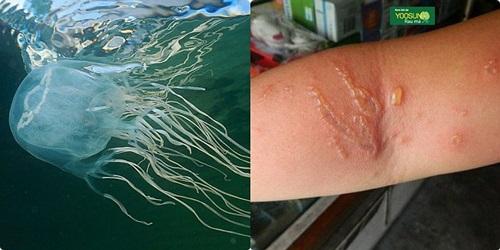 Vết sứa cắn có để lại sẹo không