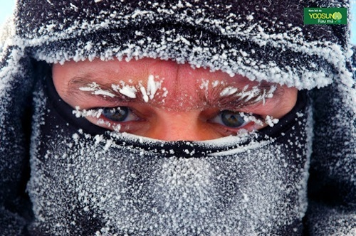 Tại sao bị bỏng lạnh da mặt