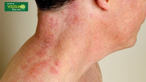 Bệnh nấm da cổ ở trẻ sơ sinh