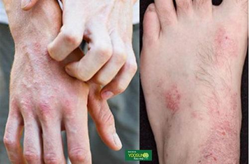 Bị ngứa da tay chân